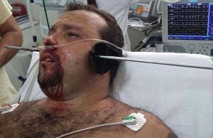 Fisherman Escapes Death After A Metal Pole Pierced Through His Head. Viewers Discretion